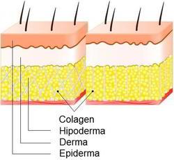 Cauzele celulitei